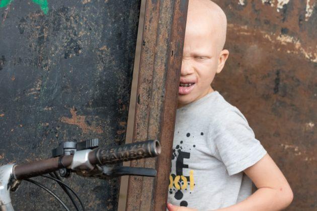 Albino fant, ki se skriva za vrati (Gambija)